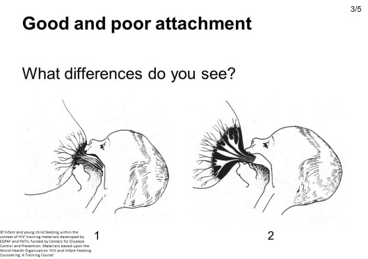 Good-and-poor-attachment